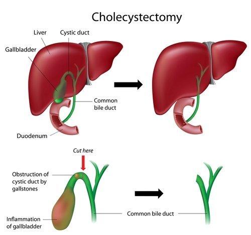 Cholecystectomy